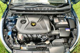 2015 Hyundai Elantra MD3 SE Sedan Image 3